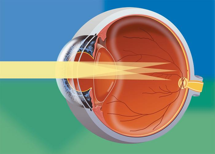 Astigmatism Astigmatism Question And Answers Firmoo Answers