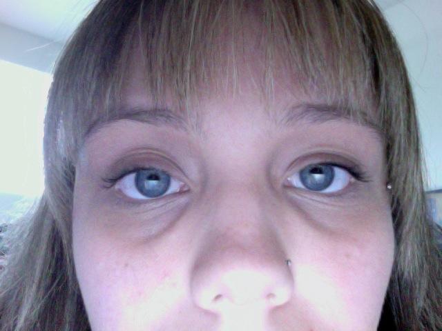 Dark Circles Around Eyes Natural