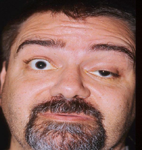 Ptosis/Drooping Eyelid Stock Image - Image: 33289621