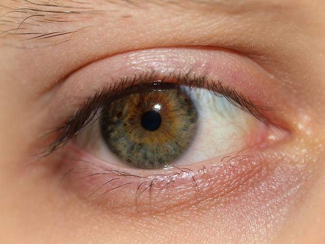 dry eyes, dry eyes question and answers