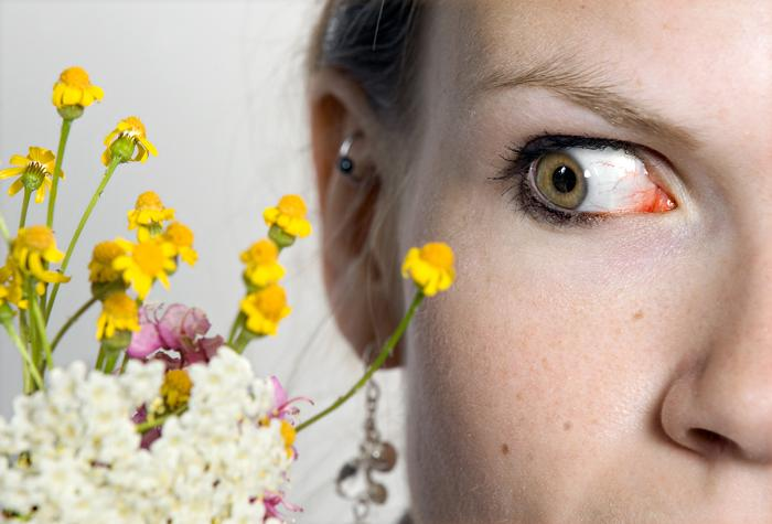 Eye Allergies Eye Allergies Question And Answers Firmoo