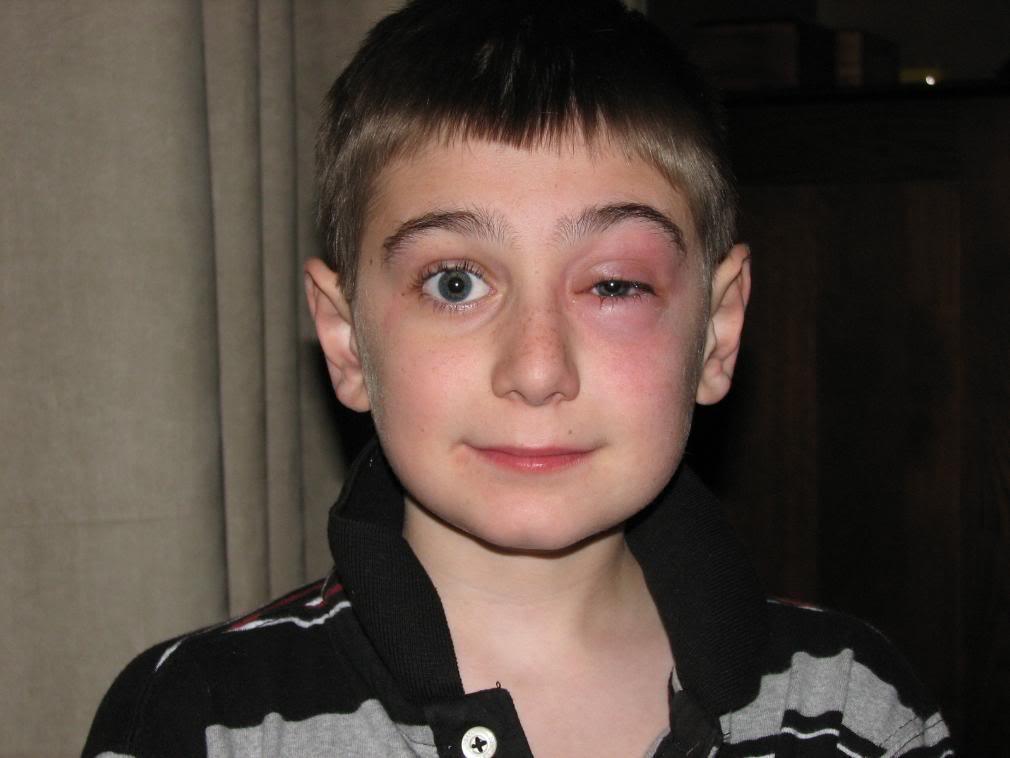 Cat Allergies On Eyes