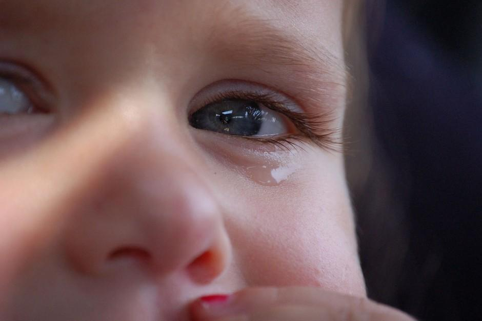 how to tell if toddler has pink eye