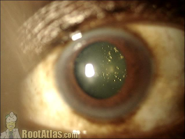 Posterior Vitreous Detachment  The American Society of