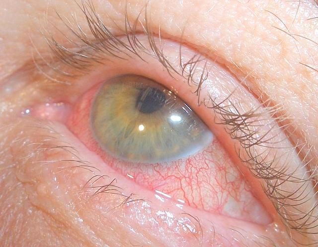 Photophobia Photophobia Question And Answers Firmoo Answers