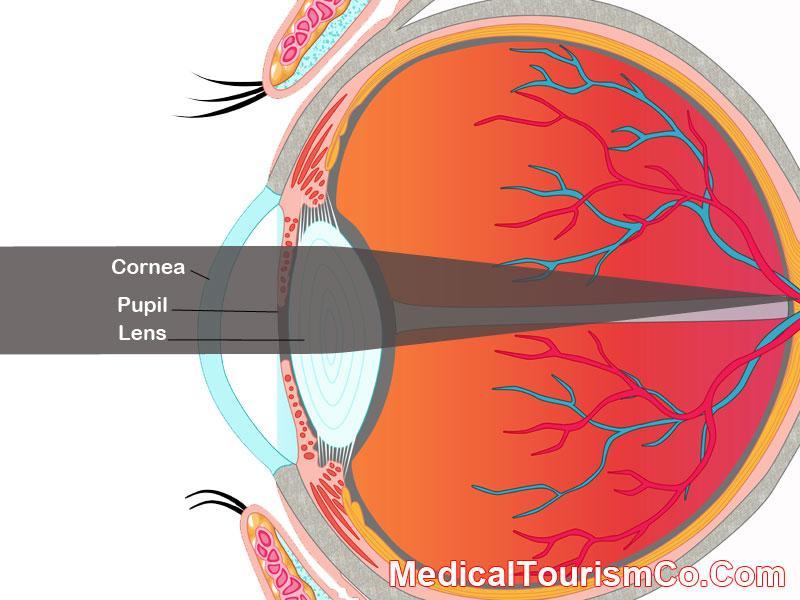 presbyopia presbyopia question and answers firmoo answers