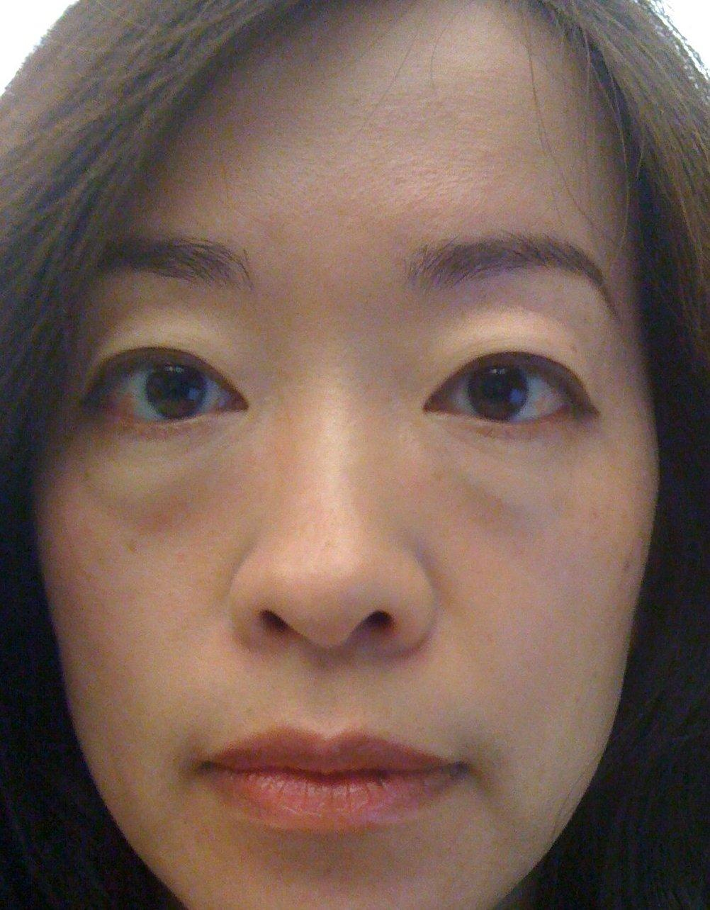 puffy eyes, puffy eyes question and answers   Firmoo Answers